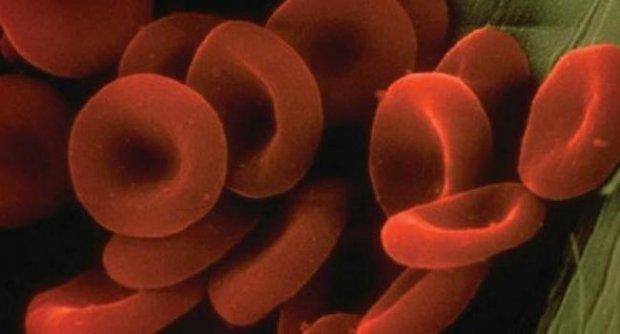 thalusimia